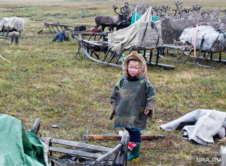 Сибирская язва у детей