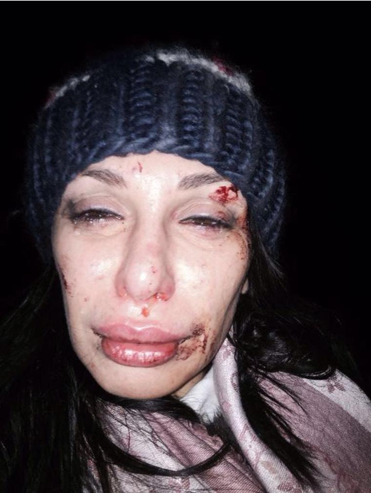 Смотреть фото девка трахает в аналь диму билана бесплатно 19 фотография